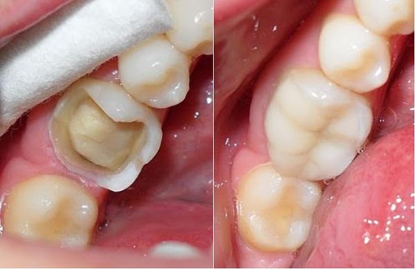 White Fillings - Platinum Dental Group